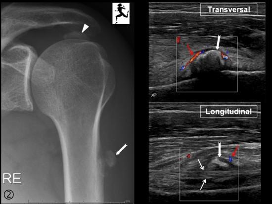 Centre d'imagerie Ostéo-Articulaire | Clinique du sport de Bordeaux