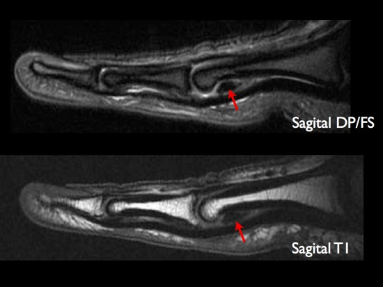 mri of thumb volar ligament rupture