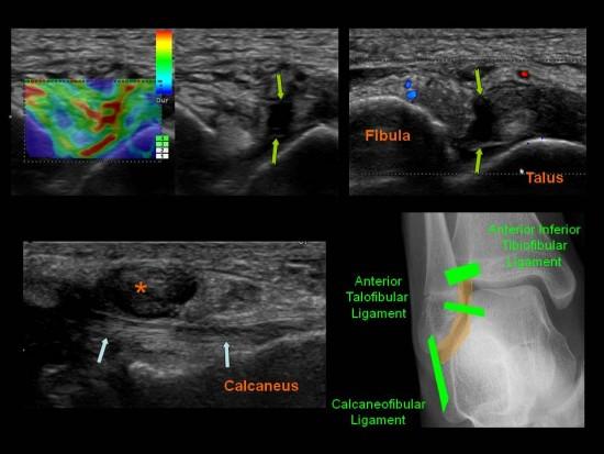 Centre d'imagerie Ostéo-Articulaire | Clinique du sport de ...