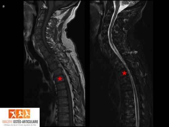 Pourquoi les reins fait mal le diagnostic