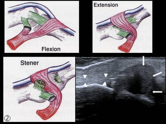 vascular tissue